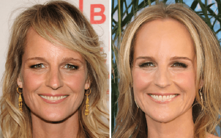 'Mad About You' star Helen Hunt Rumored to Have Done Plastic Surgery After Car Accident