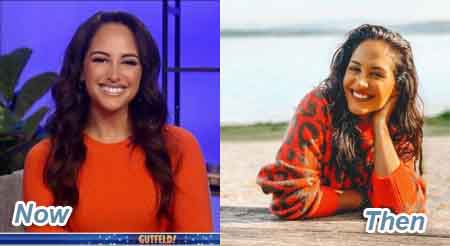 See any difference in Emily Compagno before & after plastic surgery