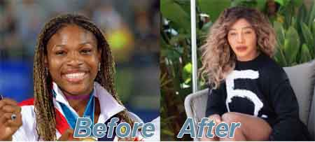 Serena Williams' plastic surgery Before & After Snippet
