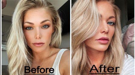 Kesley Weier Nose Job (Rhinoplasty) - Before & After