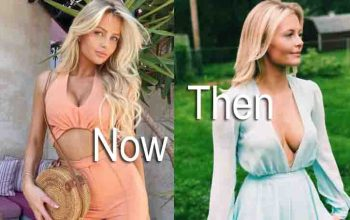 Amanda Ventrone Plastic surgery Before and after