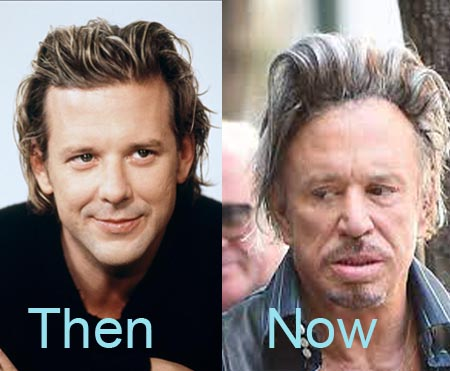 Mickey Rourke And his disastarious plastic surgery