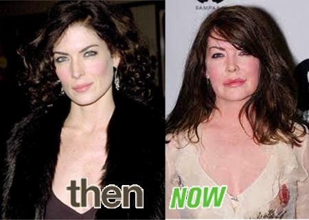 Lara Lynn Plastic surgery