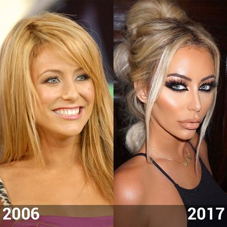 Aubrey O'Day photo comparison between 2007 and 2017; looking at her lips.
