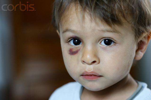 Abuso e violência na Familia