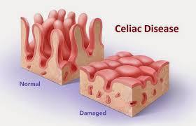 Image result for celiac disease