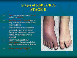 inside CRPS foot
