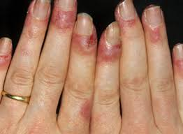 inside CRPS nails