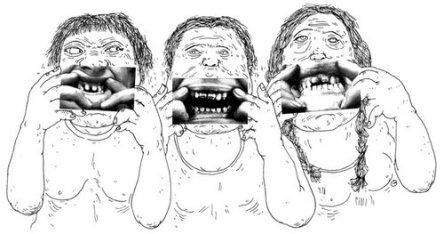 Dents gatées