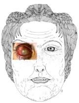 L'abcés de la cornée