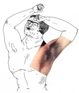 L'acanthosis nigricans