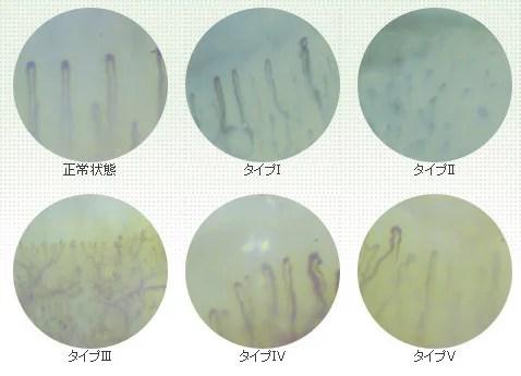 大学で検査!「毛細血管の劣化」は適度なストレッチで改善できる
