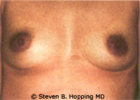 Dr. Stephen Hopping Breast Augmentation Before Photo