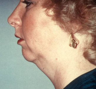 Dr. Stephen Hopping Necklift with Chin Implant Before Photo