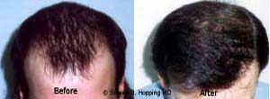 Dr. Steven Hopping Hair Transplant Before and After Photo