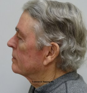 Dr. Stephen Hopping Neck Lift After Photo