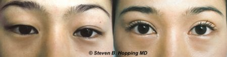 Dr. Stephen Hopping Asian Eyelid Surgery Before and After Photo