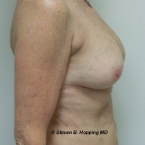 Dr. Stephen Hopping Breast Fat Augmentation After Photo