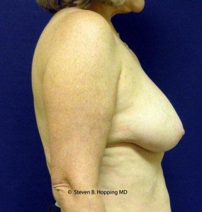 Dr. Stephen Hopping Liposuction Breast Reduction After Photo