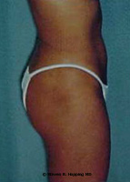 Dr. Stephen Hopping Liposuction After Photo
