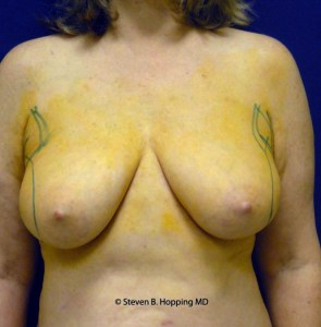 Dr. Stephen Hopping Liposuction Breast Reduction Before Photo