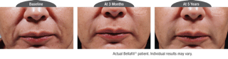 Dr. Stephen Hopping Wrinkle Filler Treatment Before and After Photo