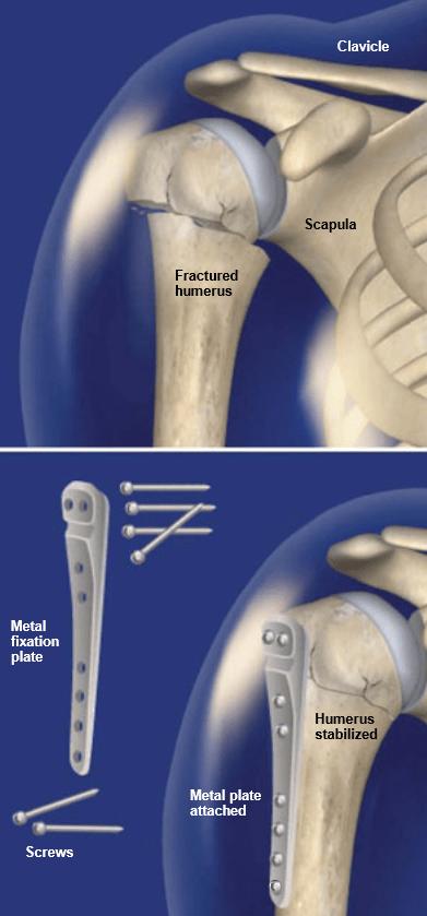 ORIF-Surgery