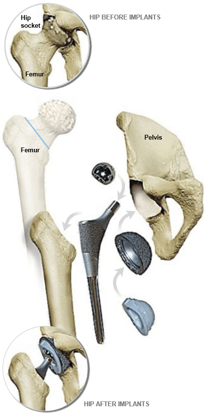 Total-Hip-Replacement