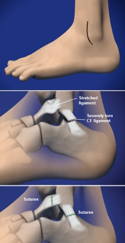Treatment Ankle Tendon Torn