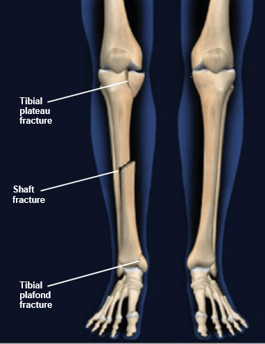 tibial-fractures