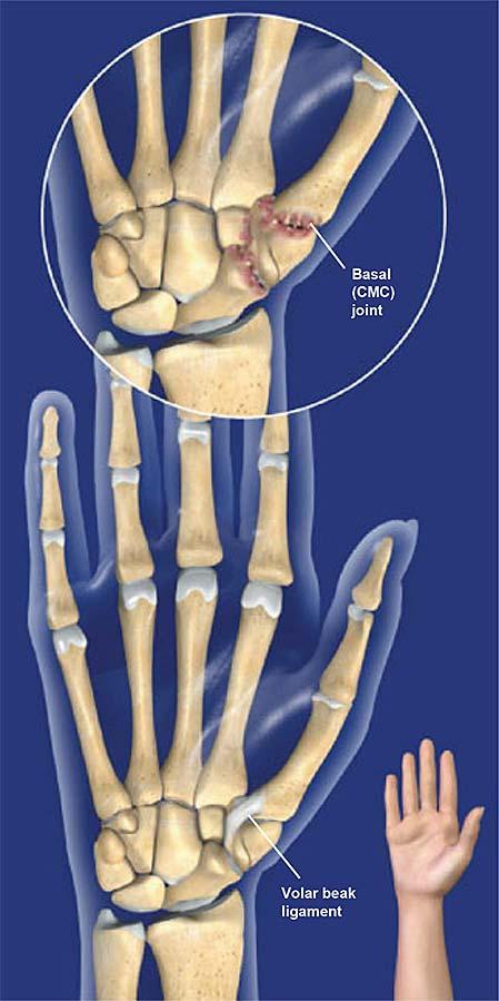 Basal-articular-osteoartritis