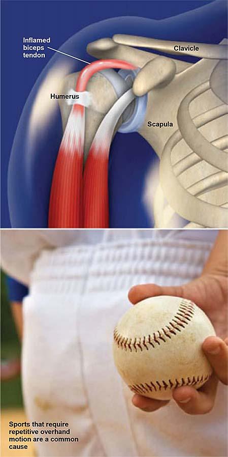 Resultado de imagen para tendinitis biceps