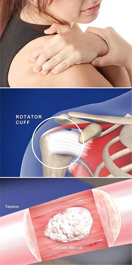 calcificación-tendinitis-del-hombro-calcificación-reactiva