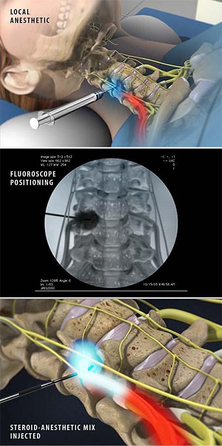 cervical-transforaminal-epidural-steroid-injection