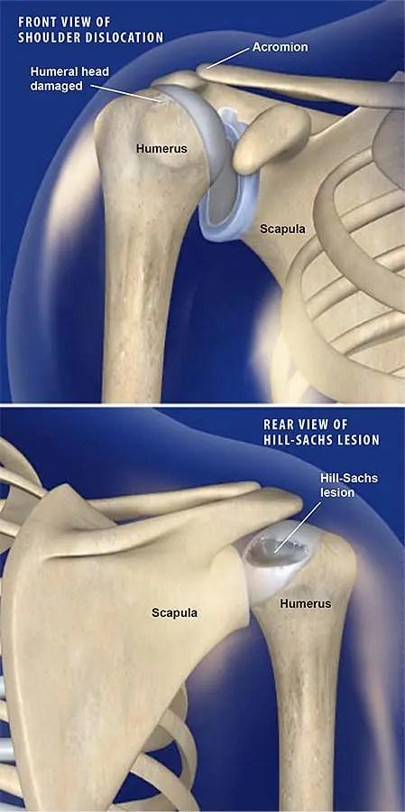 hill-sachs-lesion