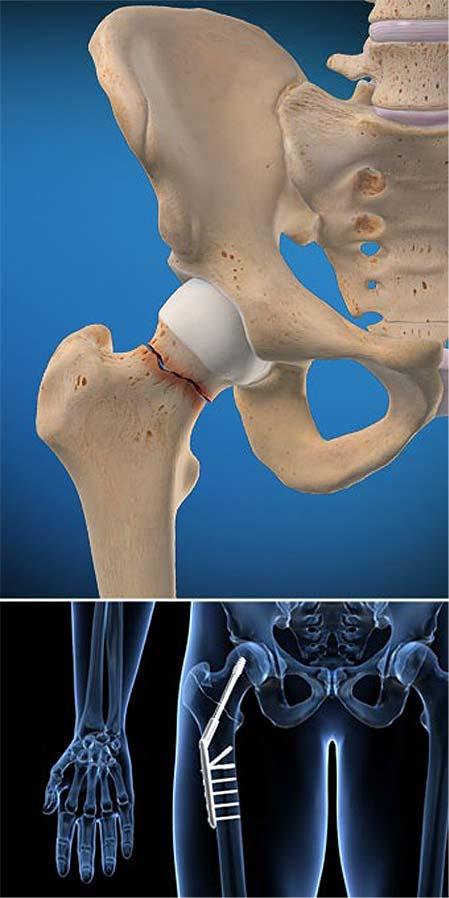 fractura de cadera