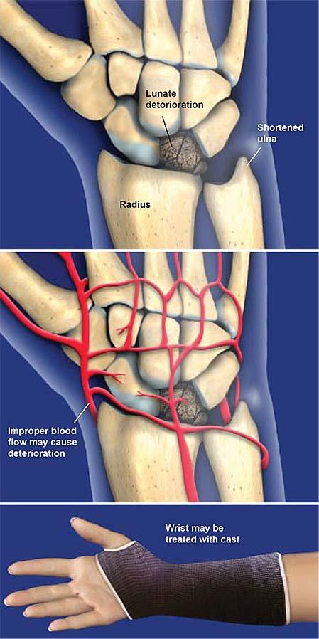 Blood Flow Lunate Bone
