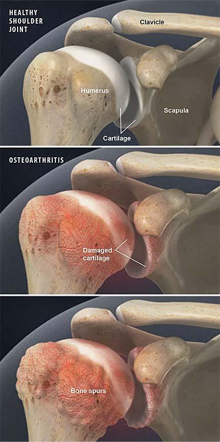 osteoarthritis-of-the-shoulder