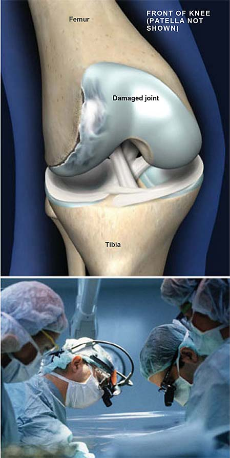osteochondritis-dissecans-of-the-knee