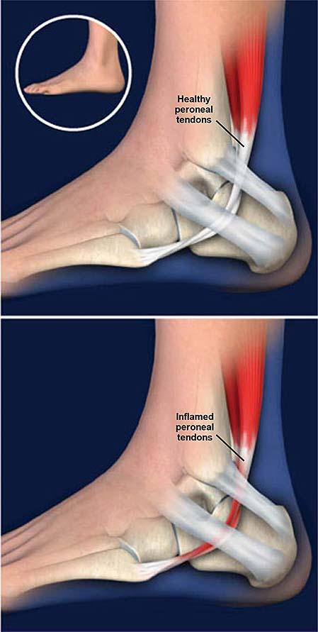 peroneal-tendonitis
