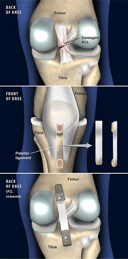 posterior-cruciate-ligament-pcl-reconstruction
