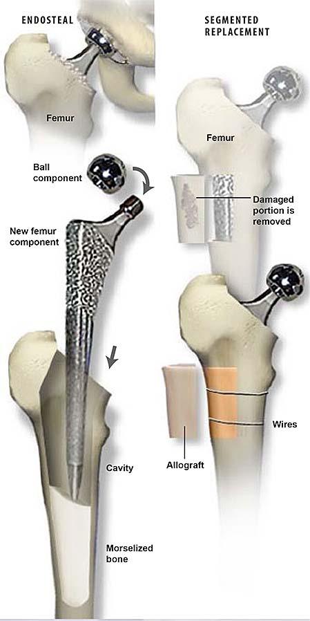 Revisión-cadera-con-aloinjerto-1
