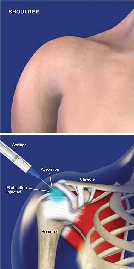 Inyección subacromial