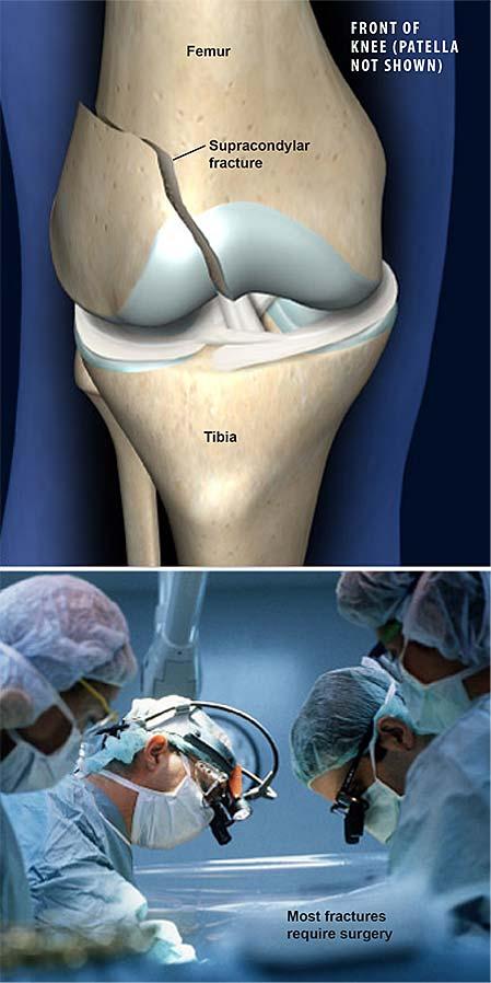 supracondylar-femoral-fracture
