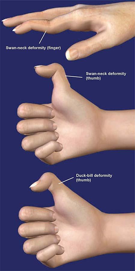 swan-neck-deformity-1