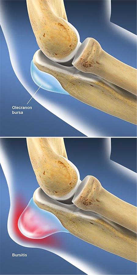 imágenes de la rodilla con piel infectada