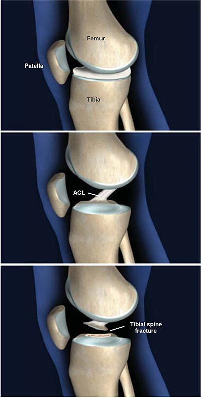 Fractures-of-the-Tibial-Spine