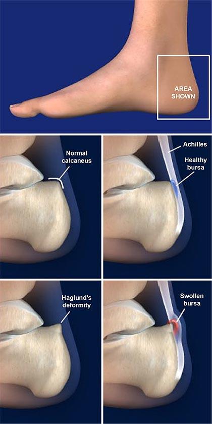 Haglund's-Deformity- (Retrocalcaneal-Bursitis)