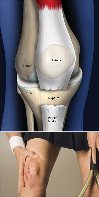 Patella-Tendon-Rupture