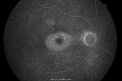 Maculopathie en oeil de boeuf - Toxicité maculaire des antipaludéens de synthèse